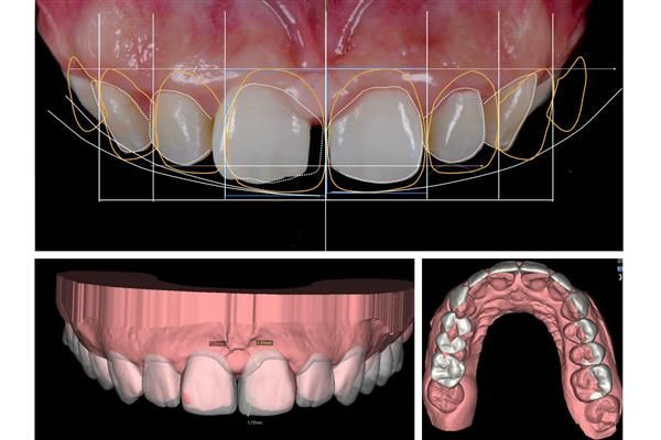 A pioneering new dentistry technique known as Digital Smile Design is changing the way cosmetic dental surgery works. Using 3D printing and scanning methods, dentists can give patients a preview of what their new smile will look like, improving communication and allowing them to make any necessary modifications.