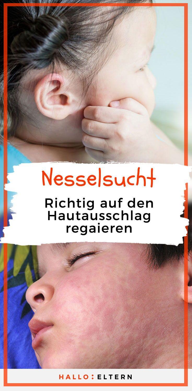 Nesselsucht bei Kindern: Woher kommt der juckende
