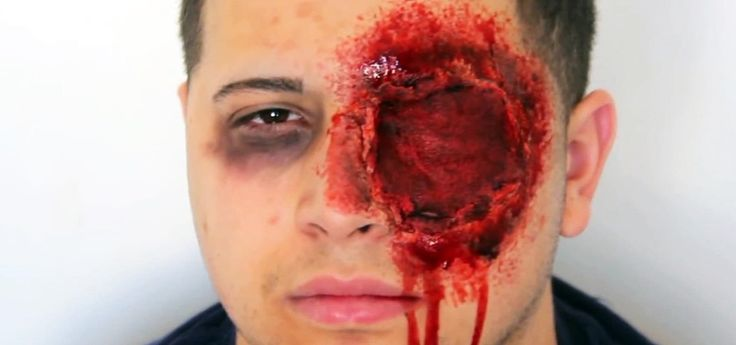 DIY Missing Eye Makeup: Create a Gruesome, Realistic Halloween Costume Using a Sock