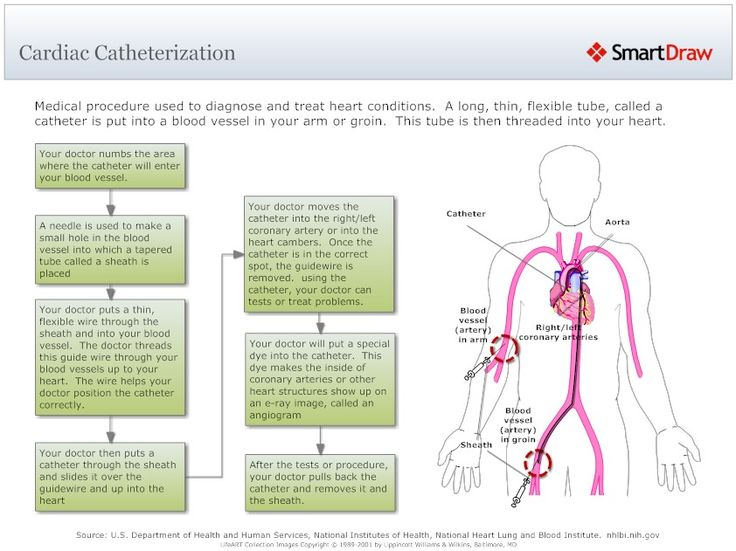 what occurs in a cardiac catheterization