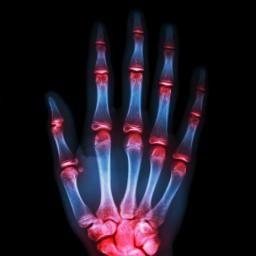 Men with a high BMI at lower risk of rheumatoid arthritis