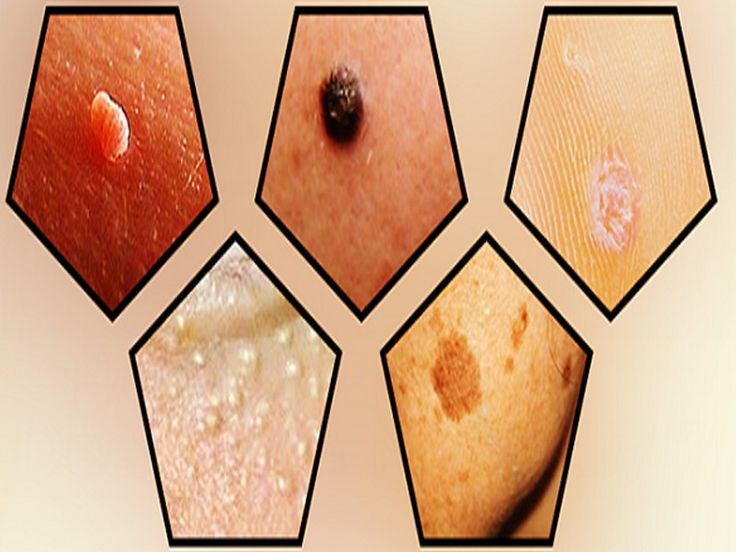 SKIN CARE :How To Remove Moles, Warts, Blackheads,…