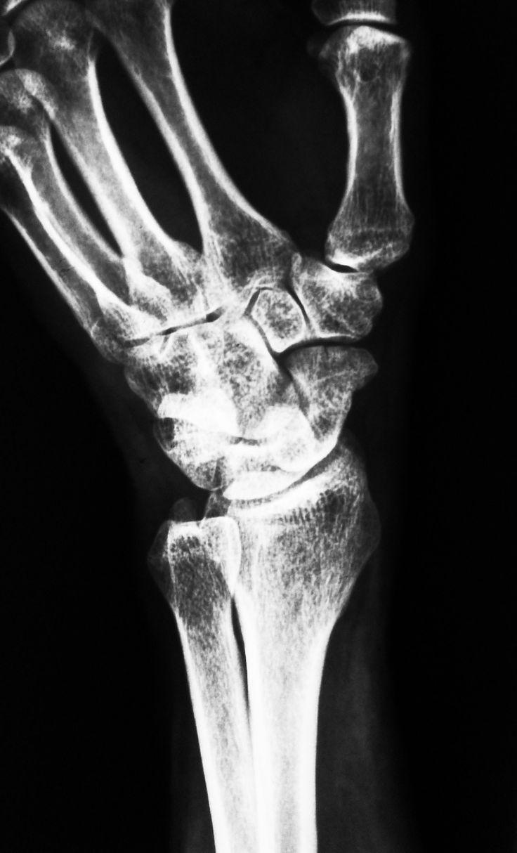 Radiografía de la muñeca, perfil: | 2014 - Mod A - TP 3 | Pinterest ...