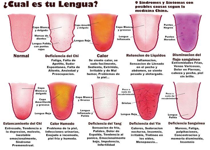 La Lengua Dice Todo Sobre Tu Salud! ¿Con Cual Lengua Te Identificas? - http://wow.mx/2014/08/19/la-lengua-dice-todo-sobre-tu-salud-con-cual-lengua-te-identificas/ - Sacar la lengua, besar de lengüita, hacer trompetillas, hacer la legua taquito, usar la lengua para chiflar y mil y un usos mas para la lengua! ¿Pero Sabes cuando esta enferma? o ¿Sabes cuando necesita ayuda?  Este Post te ayudara a darte algunos tips para cuidad de tu lengua y además