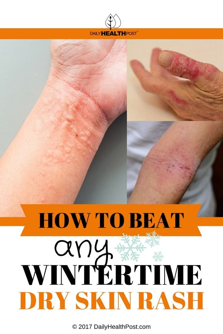 People with the following existing conditions are more prone to winter rash