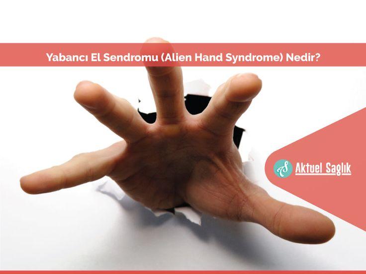 Yabancı El Sendromu (Alien Hand Syndrome) Nedir? Bilinirliği az olan bir hastalık olan Yabancı El Sendromu (Alien Hand Syndrome) nörolojik bir hastalıktır.
