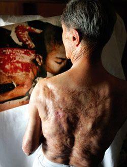 Nagasaki bomba vítima Sumiteru Taniguchi olha para uma foto de si mesmo tomado em 1945. Suas queimaduras horríveis têm exigido 17 operações.