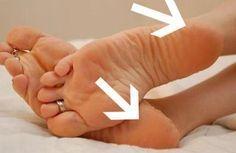 Cremes caseiros para os calcanhares rachados - Melhor com Saúde