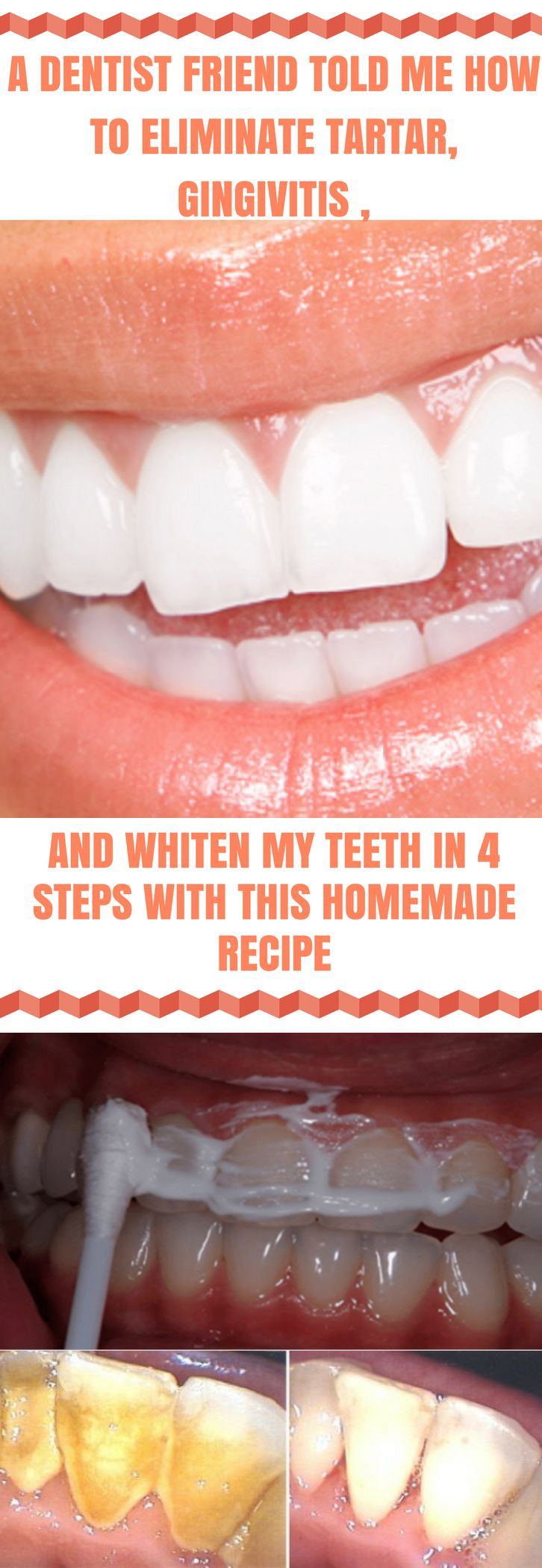 A Dentist Friend Told Me How To Eliminate Tartar Gingivitis and Whiten My Teeth In 4 Steps With This Homemade Recipe