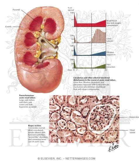 47 Best Images About Acute Renal Failure On Pinterest