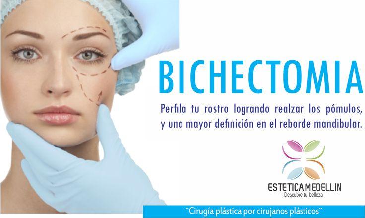 BICHECTOMIA Perfila tu rostro logrando realzar los pómulos, y una mayor definición en el reborde mandibular. #EsteticaMedellin #DiegoFraco la realizamos Pide ya tu cita Teléfono: 2688128 WhatsApp 3218736882