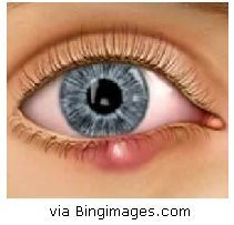 The 10 top homeopathic remedies for your eyes. homeopathynotes blogspot.com: Conditions that Affect All Ages
