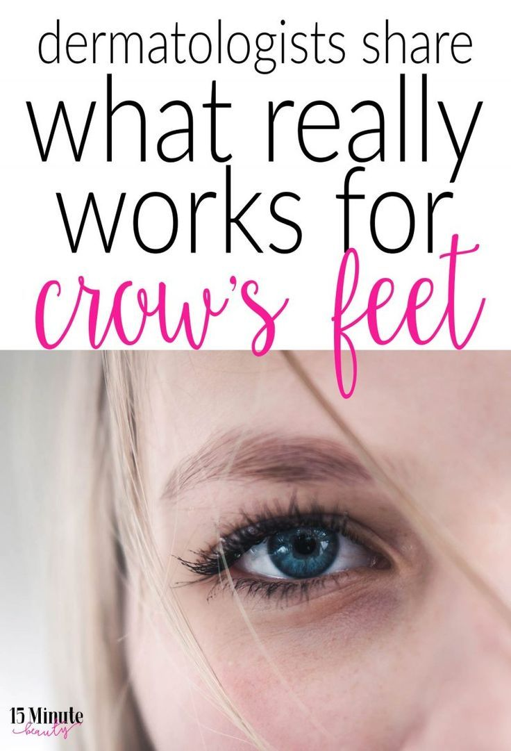 How To Get Rid Of Eye Wrinkles And Crow S Feet