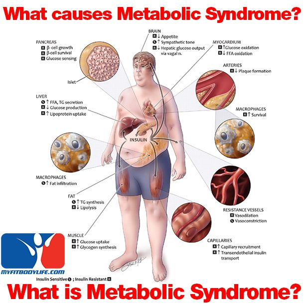 Metabolic Syndrome MedlinePlus