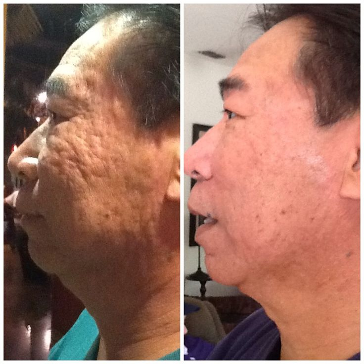 Severe Acne Scars - Bing images