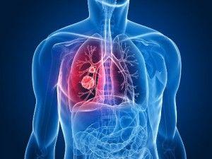 /los-9-signos-de-cancer-de-pulmon-que-deberias-conocer/