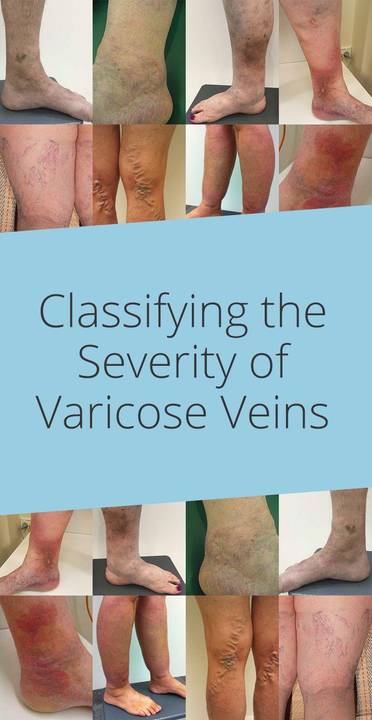 Venele varicoase: metode naturale pentru ameliorarea acestora