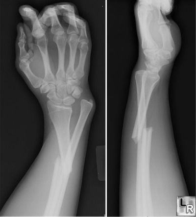 Galeazzi fracture consists of a fracture of the radius with angulation and associated dislocation of the distal ulna