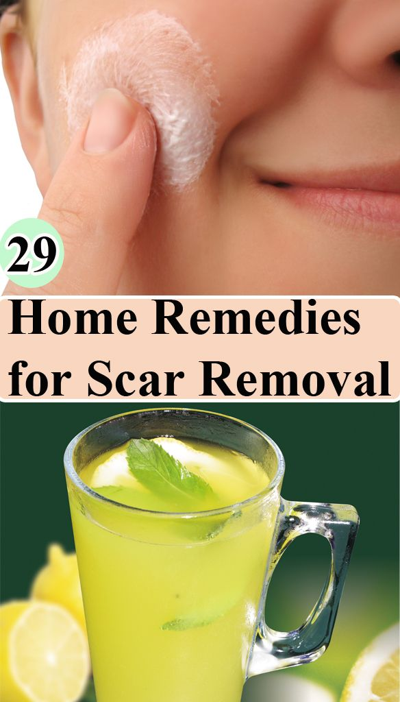 29 Home Remedies for Scar Removal