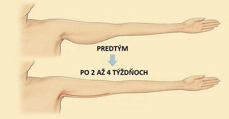 5 jednoduchých cvikov na stiahnutie uvoľnených a ovísajúcich paží - Báječný lekár