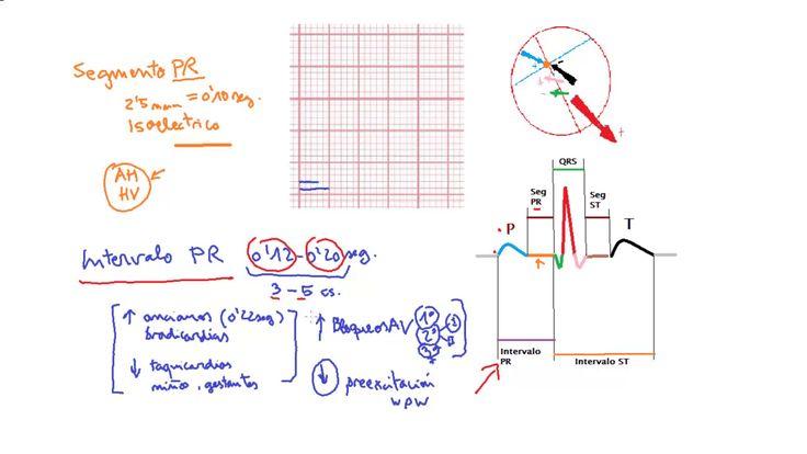 ECG normal (13): Intervalo PR (dimensiones y alteraciones) #cardiología #electrocardiograma http://www.albertosanagustin.com