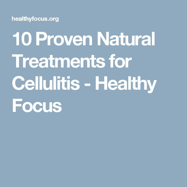 10 Proven Natural Treatments for Cellulitis - Healthy Focus