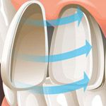 Inxpensive #CosmeticDentistryEssendon at Brunswick Dental Group http://brunswickdentalgroup.com.au/cosmetic-dentistry/