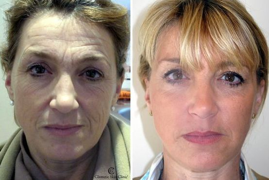 Utilizing Facial Aerobics Treatments To Reclaim Your Youth