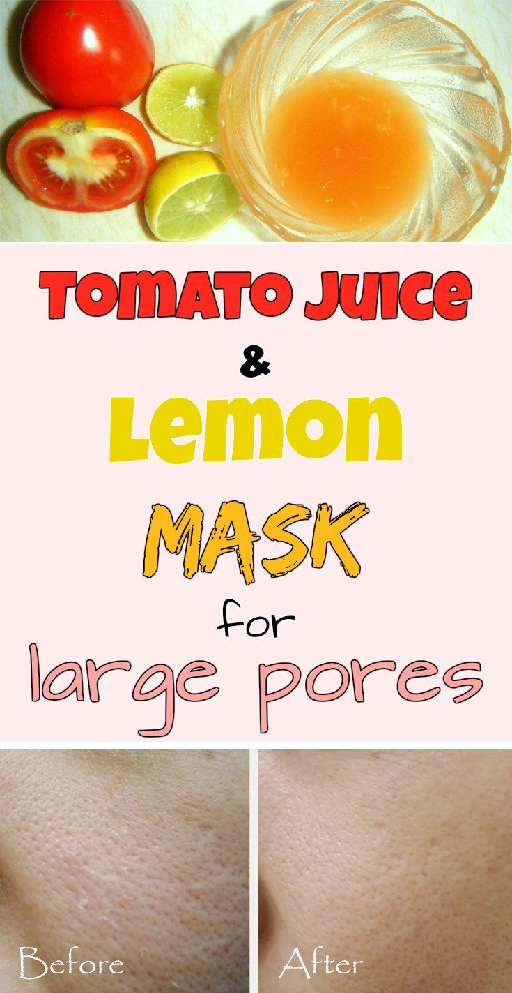 Tomato juice and lemon mask for large pores.