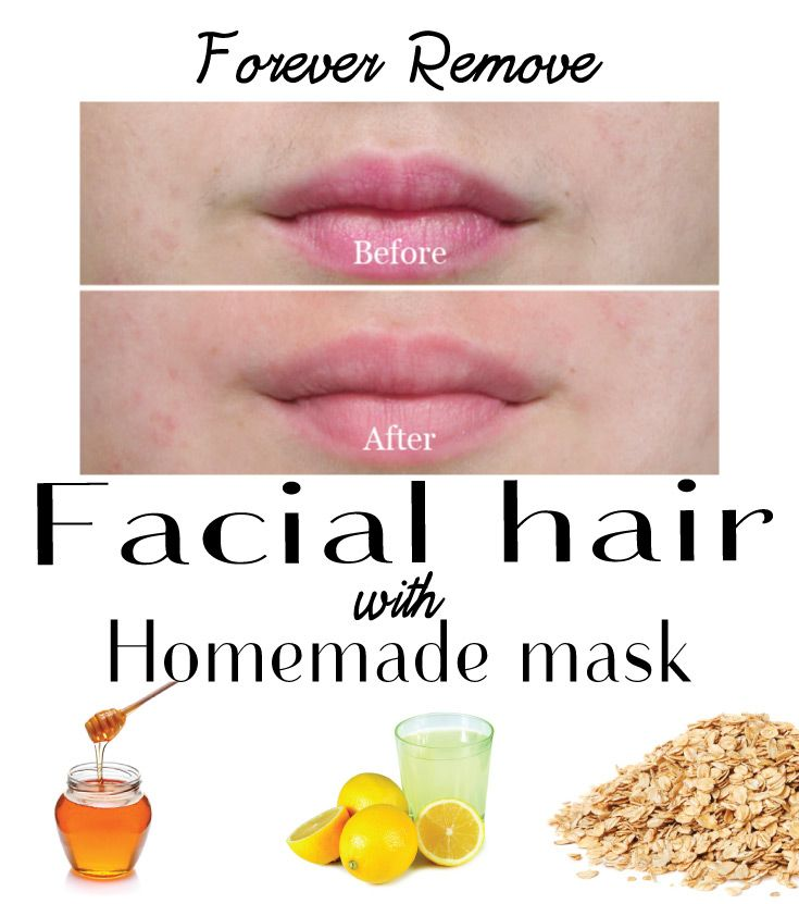 Forever Remove Facial Hair with Homemade Mask