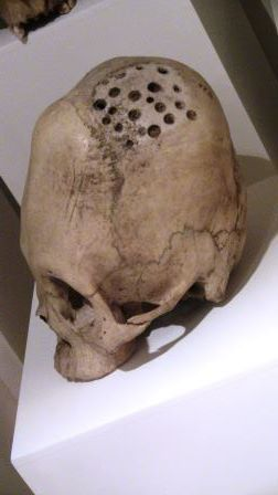 Elongated skull, at least 1000 years old with ancient drill holes