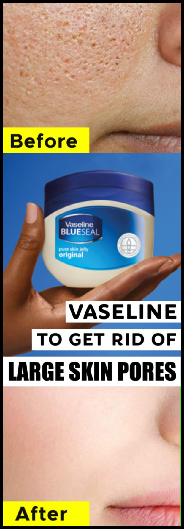 Use vaseline to get rid of large open skin pores in just 5 minutes