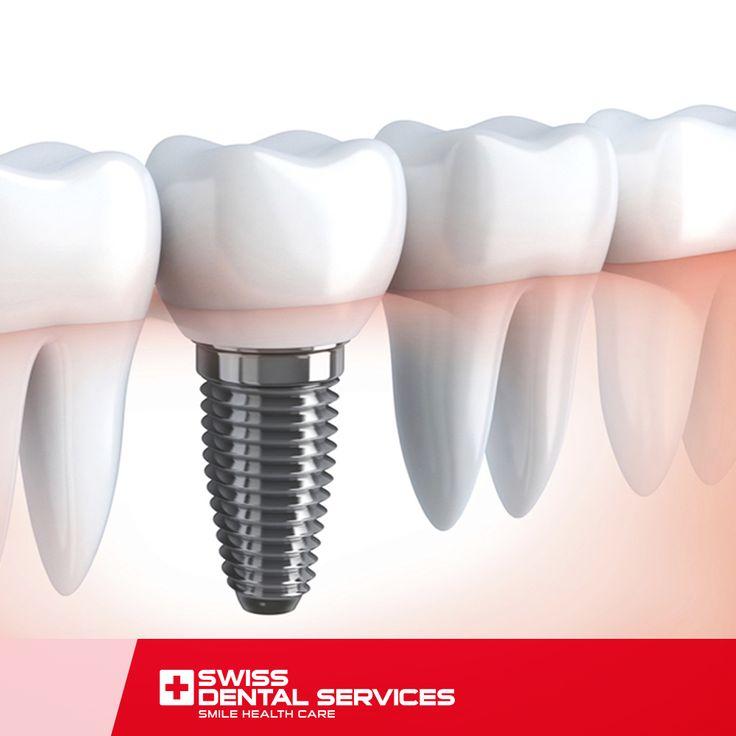Saviez-vous que le matériau des implants dentaires est 100% biocompatible? www.swissdentalservices.com/fr
