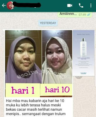 Jual Trulum Skincare Di Tanjung Jabung Timur Jambi Wa 0811 233 8376 Trulum Merupakan Produk Skincare Perawatan Wajah T Perawatan Wajah Kota Bukittinggi Wajah