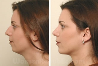 An example of before/after images of a chin implant patient