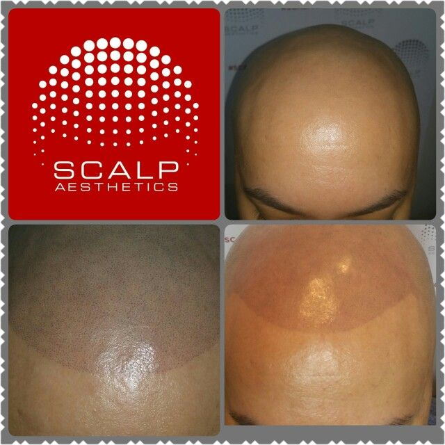 Male pattern baldness solution #balding #scalp micropigmentation