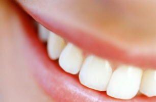 Quer seja por causa do café ou simplesmente genética, muitas pessoas tendem a ter os dentes muito amarelos, e eles querem saber com