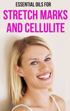 Essential Oils For Stretch Marks and Cellulite.