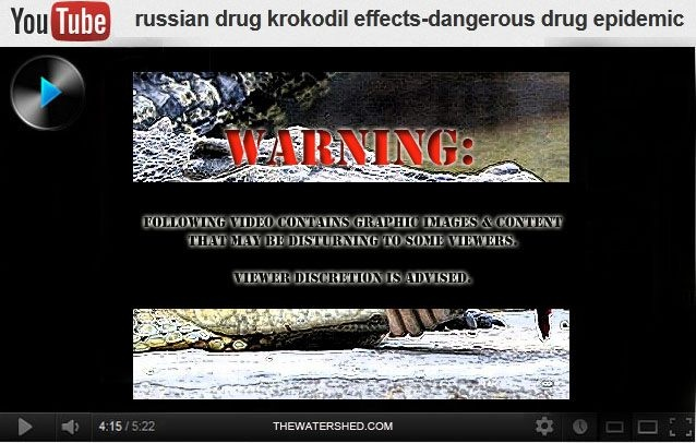 Krokodil Drug Images: The Effects Of Drug Abuse    Krokodil Drug Images: The Effects Of Drug Abuse Warning: The following video contains graphic images & content that may be disturbing to some viewers. Viewer discretion is advised #Addiction #AddictionTreatment #crocodiledrug #desomorphine #heroin #krokodil #miamizombie #Oxycontin #Smiles #2C-1 #streetdrugs #substanceabuse   #SyntheticDrugs #zombieapocalypse #zombieattack #zombiedrug #zombies    Warning: The following video contains…