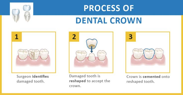 #Crowns and #bridges can be used to permanently fix or replace damaged teeth. Dental crowns and dental bridges are the absolute most normal types of dental implants used to reestablish, repair, protect and beautify your teeth.