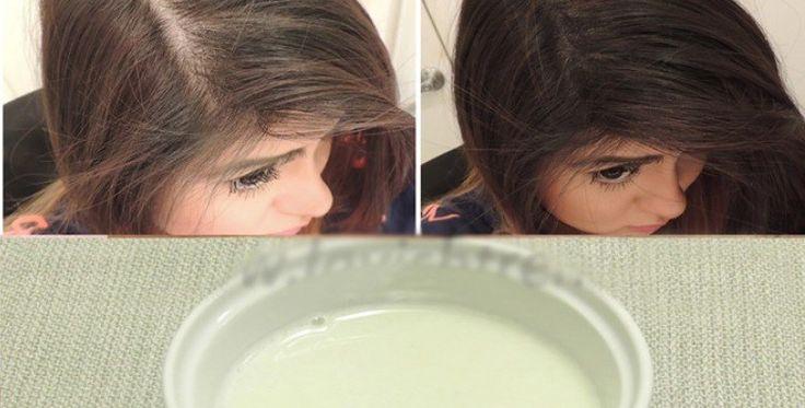 De que no basta en el organismo si caen los cabellos al hombre
