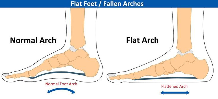 Does your whole foot touch the floor when you stand ? If so, you have flat feet. This could be a disadvantage and could be a cause for foot problems. This is because your feet are the foundation for your body. Having flat feet can cause problems throughout the skeletal structure and can possibly bring the joints out of alignment. Flat feet can cause a weakened posture and discomfort through your hips and lower back. #IHateBackPain
