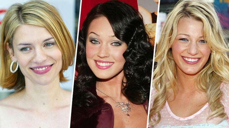 Celebrity Plastic Surgery: 30 Before-and-After Pics | StyleCaster