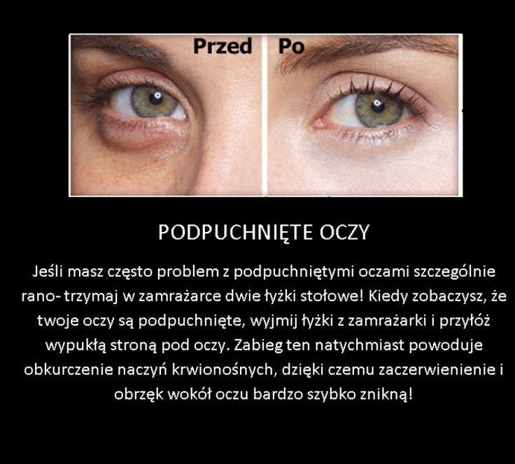 Sposób na podpuchnięte oczy