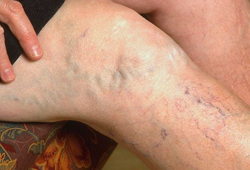 * How to - Help For Varicose Veins? Click for Tipsnip...