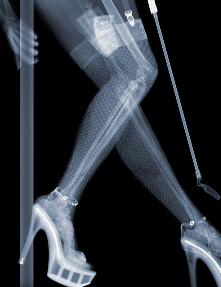Mejores 33 imágenes de Radiografias Del Mundo/Radiographs World en ...