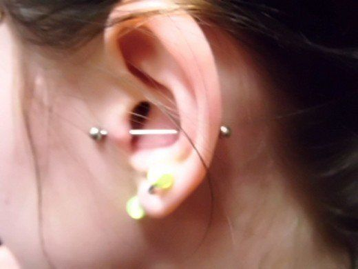 Read this before using hydrogen peroxide to treat infection caused by ear piercing