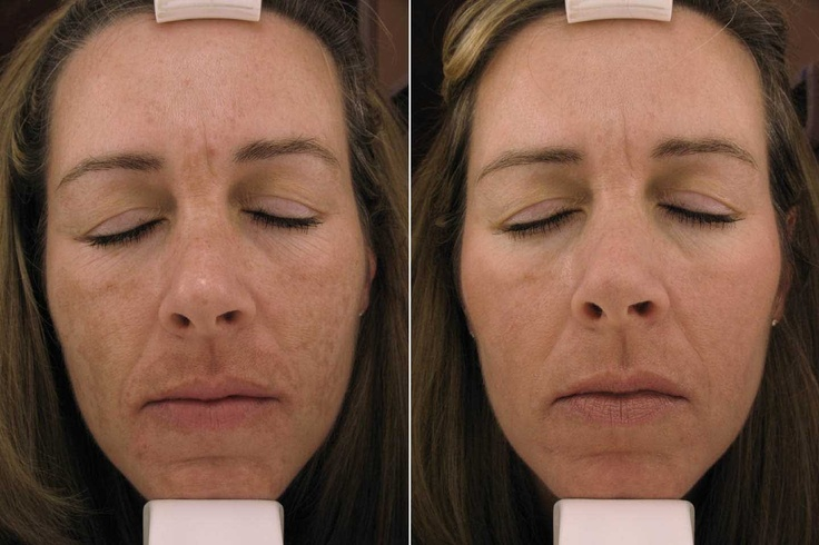 how to fix hyperpigmentation from chemical peel