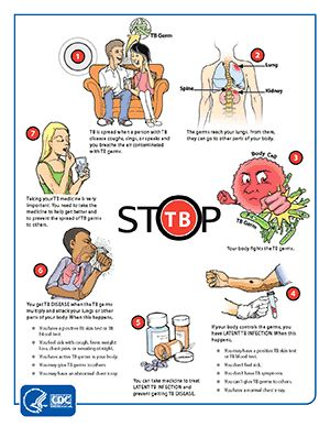 Stop Tb Poster Health Advisory Data Recovery