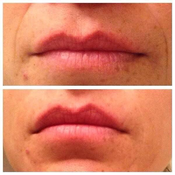 Instant facelift/botox gel.  Results in two minutes.  http://2minuteskinmiracle.com/CP1/?u=871